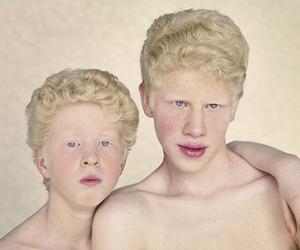 "Gustavo Lacerda's ""Albinos"" Photo Series"